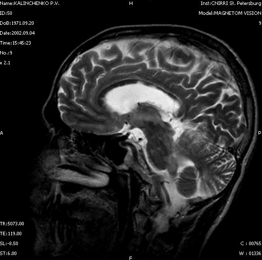 Очаги демиелинизации в мозолистом теле